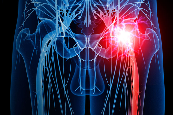 Conservative Treatment Provides Faster Sciatica Recovery